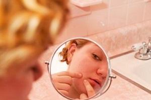 از بین بردن جای جوش با 7 کرم تخصصی پوست
