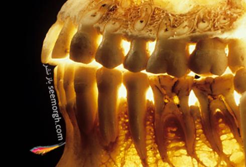 بهداشت دهان و دندان از ابتلا به چه بيماري هايي جلوگيري مي کند؟