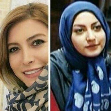 فریبا نادری قبل و بعد از جراحی زیبایی بینی