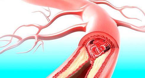 عصاره گياه جينکو بيلوبا دارويي براي درمان سکته مغزي