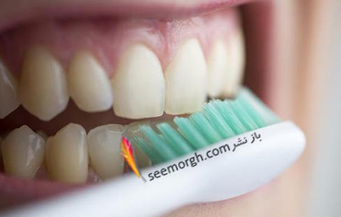 اين 6 عادت باعث زرد شدن دندان ها مي شوند