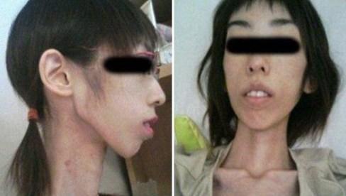 کاهش وزن عجیب دختر ژاپنی