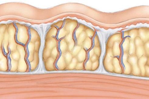 سلولیت چیست و روش های درمان سلولیت کدامند؟