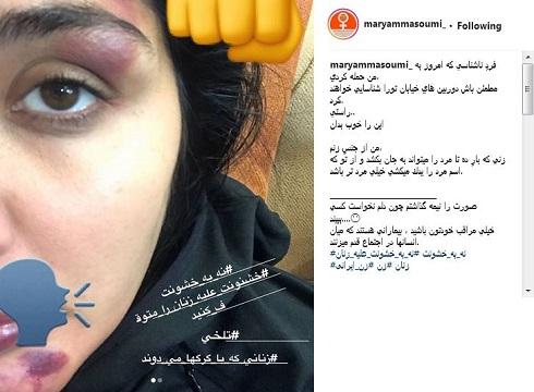 صورت کبود مریم معصومی در اثر حمله به وی