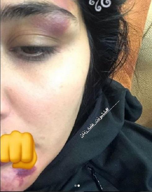 حمله به مریم معصومی در خیابان