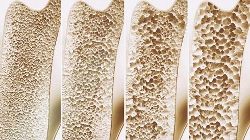 تشخیص پوکی استخوان از روی تراشه های ناخن