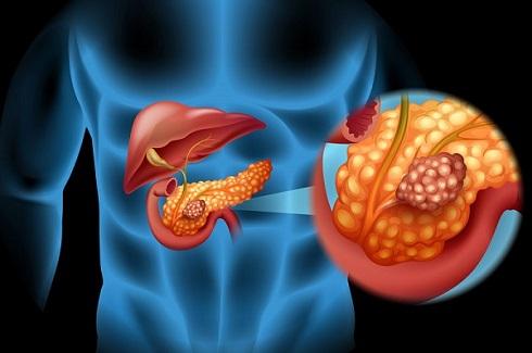 pancreatic cancer 1.jpeg