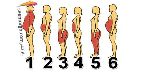 انواع چاقی و عوارض چاقی