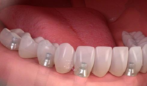 dental-implant01.jpg