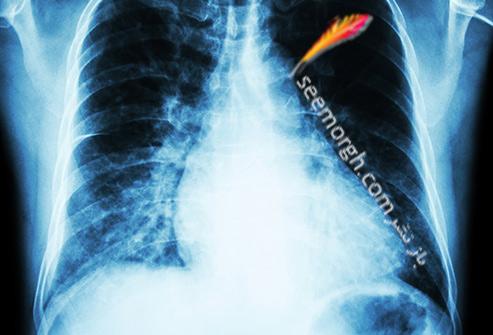 فشار خون,قلب,عکس رادیولوژی