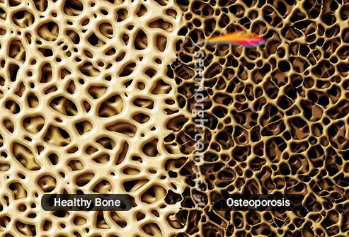 تراکم استخوان,مقایسه استخوان سالم و پوکی استخوان