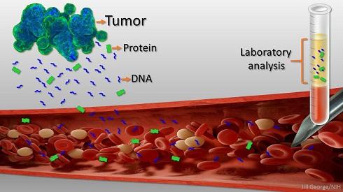 تشخیص سرطان تنها با چند قطره خون امکان پدیر شد