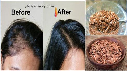 درمان موثر ریزش موها با ژل دانه کتان