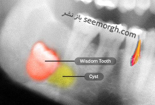 دندان عقل به چه دردی می خورد؟ آیا باید دندان عقل را کشید؟