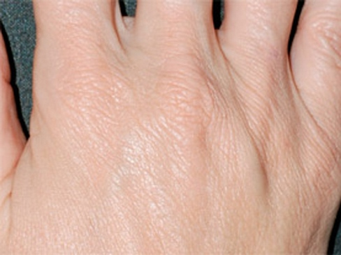 Crepey Skin - عواملی که باعث می شود دست تان پیر به نظر برسد و راه حل رفع آن