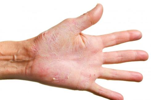 Scaly Skin - عواملی که باعث می شود دست تان پیر به نظر برسد و راه حل رفع آن