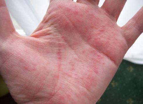خشکی، خارش و راش پوست دست