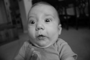 تولد نوزاد بدون چشم!