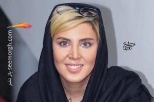 عمل زیبایی بینی لیلا بلوکات! + عکس های قبل و بعد از عمل زیبایی
