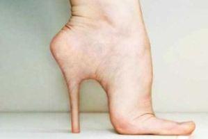 جراحی پاشنه پای زنان برای قد بلندتر شدن!