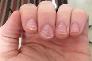 علت لکه های سفید روی ناخن شما چیزی جز کمبود کلسیم است!