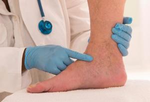 علت ورم پا چیست، چگونه درمانش کنیم؟