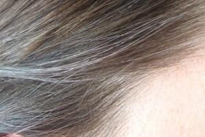 زود سفید شدن موها، دلایل و راه حل ها