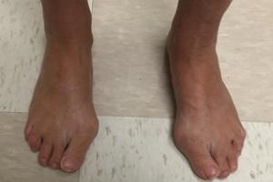 انحراف یا قوز شست پا| علت و درمان