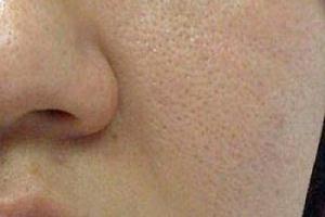 چگونه منافذ باز پوست را از بین ببریم؟