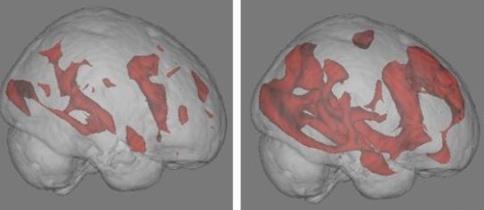 MRI گرفته شده از مغز انسان