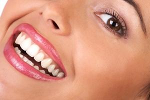 سفید کردن دندان با روش های طبیعی