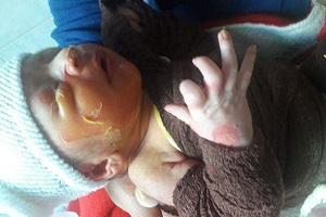 خبر سوختگی نوزاد 3 روزه تایید شد