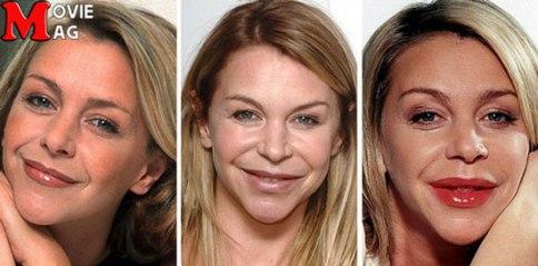 چهره لزلی در طول سالها و بعد از جراحی زیبایی