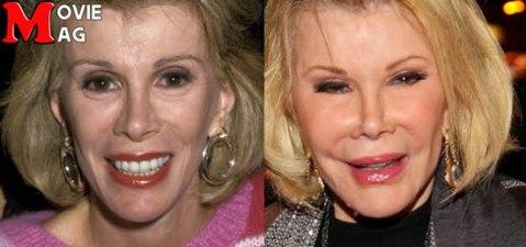 چهره جوآن ریورس در طول سالها و بعد از جراحی زیبایی