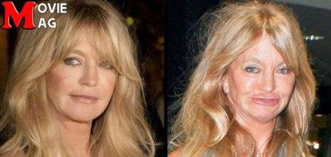 چهره گلدی هاون در طول سالها و بعد از جراحی زیبایی