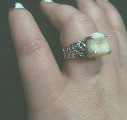 حلقه ازدواج با نگین دندان عقل!
