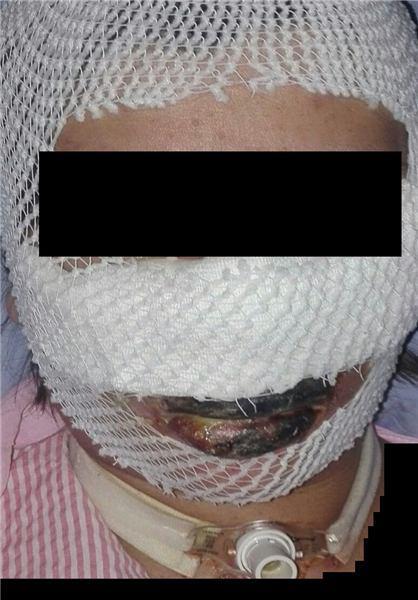 وضعیت مادری که در اتاق عمل سوخت