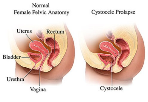 cystocele-prolapse.jpg