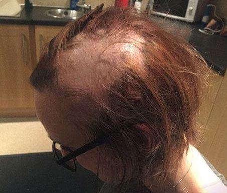 ریزش مو بخاطر استرس امتحان