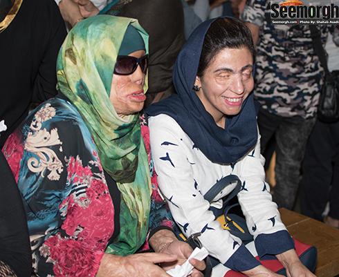 قربانیان اسیدپاشی در نمایشگاه عکس فیلم لانتوری