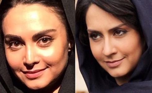 خانم بازیگر قبل و بعد از جراحی بینی