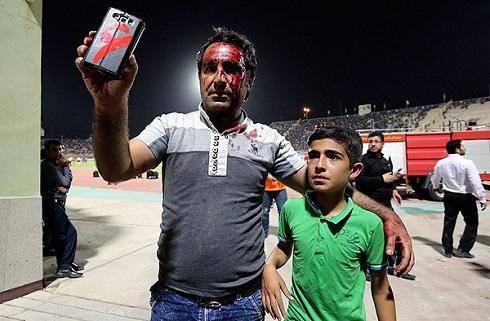 تصاویر 18+ از دیدار پرسپولیس و استقلال خوزستان