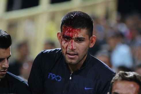 عکس درگیری خونین هواداران پرسپولیس و استقلال خوزستان