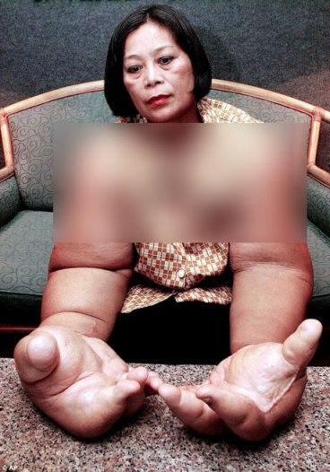 دستان غول پیکر زن تایلندی