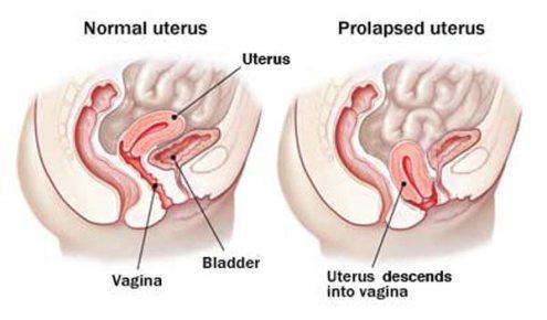 uterine_prolapse.jpg