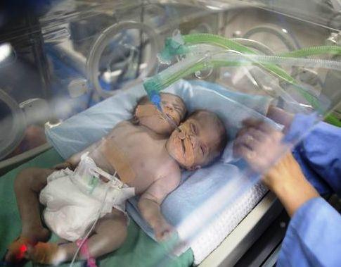 عکس نوزاد 2 سر در بیمارستان
