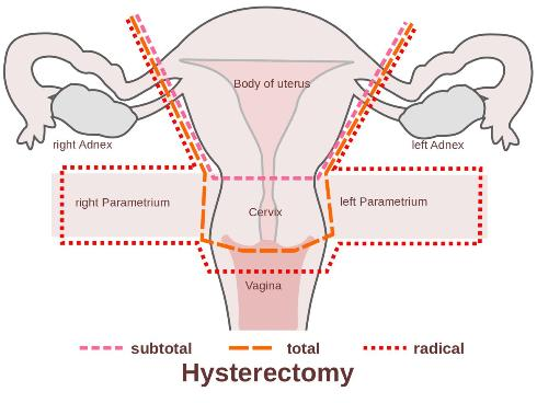 آشنایی بیشتر با هیسترکتومی