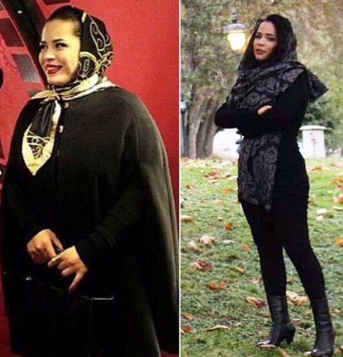 ملیکا شریفی نیا قبل و بعد از 20 کیلو کاهش وزن