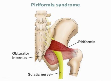 عضله گلابی شکل (Piriformis)