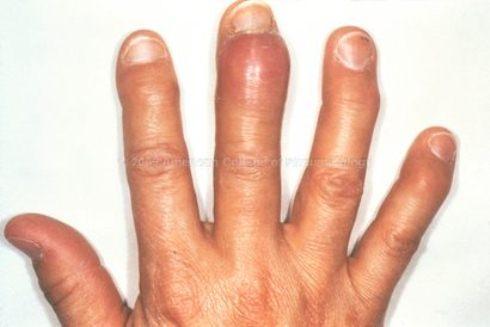 reactive_arthritis_gonorrhea.jpg
